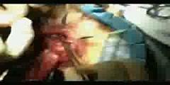 Rectal Prolapse - Treatment