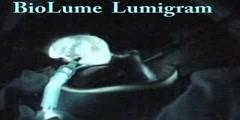 Gall bladder Lumigram