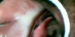 Vaginal Endoscopy
