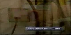 Burns Caused by Electrical