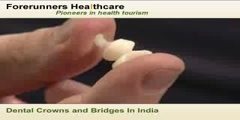 Dental Crowns And Bridges in India