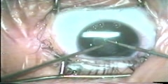 Secondary Cataract