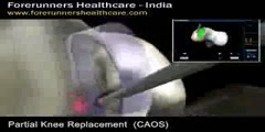 Live Partial knee replacement surgery in India