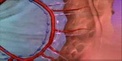 Cancer Colon Surgery Animation