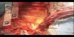 Open Heart Surgery Demostration
