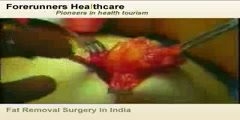 Fat Removal Surgery in India