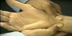 Arm Test
