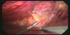 Laparoscopic transabdominal preperitoneal hernia repair for direct inguinal