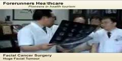 Facial Cancer Surgery Video