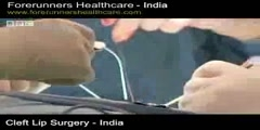 Cleft Surgery in India