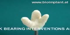 Multi-Rooted Dental Implant