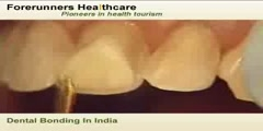 Dental bonding treatment in India at a less cost
