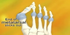 Formation and Treatment of Bunions