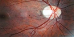 Diabetic Retinopathy Screening