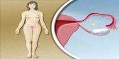 Pregnancy in Female