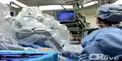 Robotic Hysterectomy for Endometrial Carcinoma Surgery