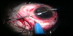 Removal of Glass Intraocular Foreign Body Management
