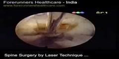 Avon Quality Spine Surgery Procedures in India at Delhi and Mumbai