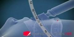 Endotracheal intubation for artificial ventilation