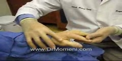 Dr Momeni Shows Surgery Procedure on Dupuytren's Contracture