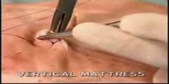 Vertical Mattress Suture Technique