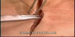 Demonstration of  Subcuticular Skin Suturing