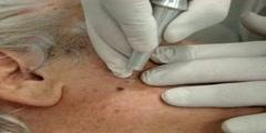 Co2 laser For Skin Spot Treatment