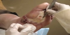 Treatment of Diabetic Wound on Foot