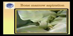 Pediatric Bone Marrow Aspiration Procedure