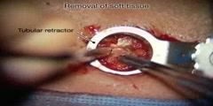 Recurrent lumbar disc herniation