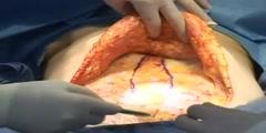 Tummy Tuck Surgery(Abdominoplasty)
