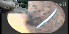 Percutaneous endoscopic colostomy procedure
