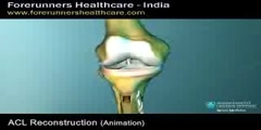 Anterior Cruciate Ligament  ACL Reconstruction Surgery in India
