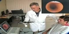 Tracheal Intubation Procedure