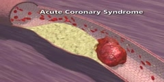 Pathophysiology of Coronary Artery Disease