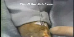 Techniques of venous access cut down