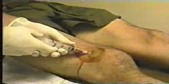 Knee Joint Injections and Aspirations
