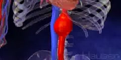 Defining Aortic Aneurysm in 3D Animation