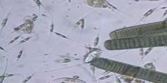 Cylindrothecia and Cyanobacteria in the Weep