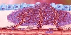 Tumor Vasculature