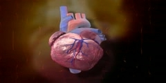 medical animation heart stent MOA medical device