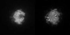 ElmoA and Actin in a Dictyostelium Amoeba