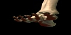 NurseReview.Org - Ankle Dorsiflexion Extension