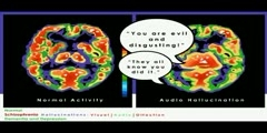 NurseReview.Org Animation on PET Scan