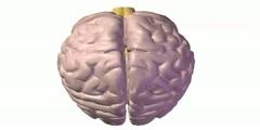 Brain Attack