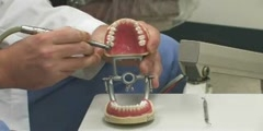 Dental Health : How Does a Dentist Fill a Cavity?