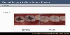 DENTAL FILLING SURGERY CURES TEETH CAVITIES.