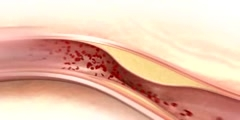 Coronary Disease Animation