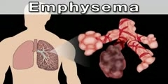 Chronic obstructive pulmonary