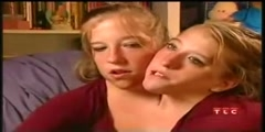 Description of conjoined twins, Abby and Brittany Hensel